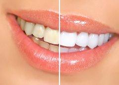 При регулярном применении активированного угля ваша улыбка станет белоснежной