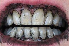 Смешайте уголь с зубной пастой, и полученной смесью чистите зубы